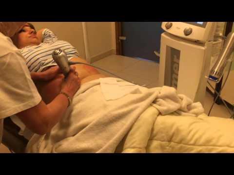 Terapia falą uderzeniową ZWavePro po zabiegu kriolipolizy ZLipo
