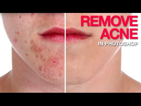 photoshop - Removing Acne in Photoshop Anyone who has gone through puberty knows that acne can ruin a photo. Don't let those spots get you down! In this episode we show ...