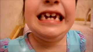 My middle daughter has the batman emblem in her mouth....no kidding.   Just watch!