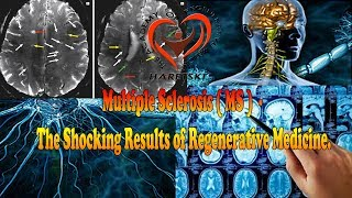 Multiple Sclerosis (MS) - The Shocking Results of Regenerative Medicine.