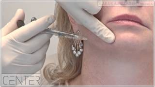 Video Non-Surgical Jowl and Jawline Lift | Dr Babak Azizzadeh in Beverly Hills MP3, 3GP, MP4, WEBM, AVI, FLV Desember 2018