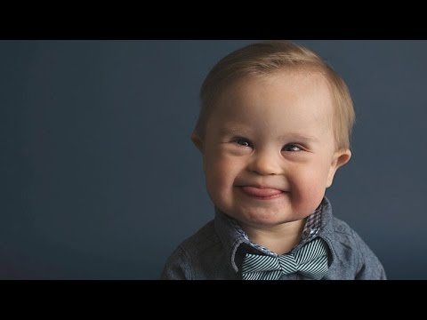 Watch video Mom Shocked Son with Down Syndrome Was Overlooked By Modeling Agency