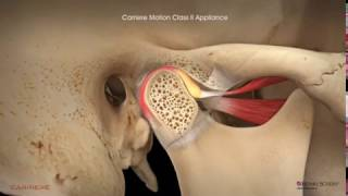 Carriere® Motion Clear™ Appliance with Clear Aligners Patient Education Animationin the lower arch