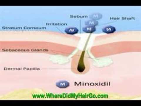 How to Make Minoxidil (Rogaine) More Effective