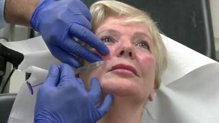 Video Eight Point Lift to Left Side of Face - Training Video For Medical Professionals Only MP3, 3GP, MP4, WEBM, AVI, FLV Oktober 2018