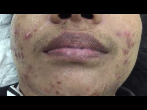 Infection acne & cystic acne