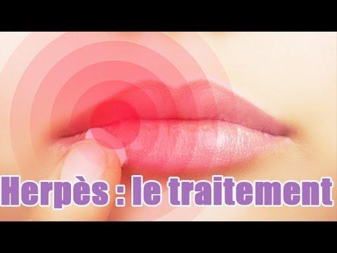 comment guerir les ulceres dans la bouche