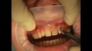 LIVE OPERATION Gingiva Marginal Cut