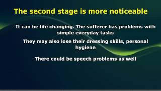 Thanks for watching dementia symptoms stages. Do visit http://www.treatmentfordementia.org/early-signs-of-dementia.html for...