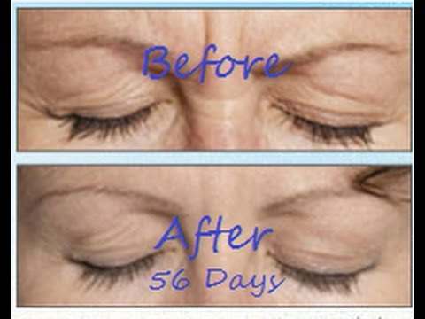 BEST Anti Aging Eye CREAM– Made look 10 YEARS Younger