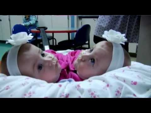 Allison and Amelia Tucker: Conjoined Twins Separated at Eight Months