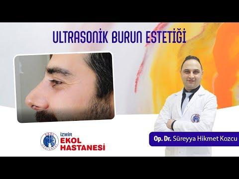 Ultrasonik Burun Estetiği - Opr. Dr. Süreyya Hikmet Kozcu - İzmir Ekol Hastanesi
