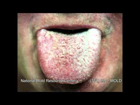 The Symptoms of Mold Exposure and Mold Illness from Black Toxic Mold Exposure