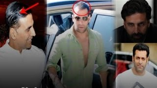 12 Bollywood Celebs Before And After Hair Transplantation