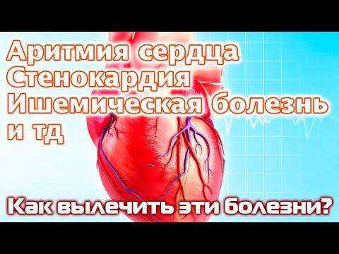 Нарушение ритма сердца, ИБС, стенокардия - эффективное безоперационное лечение