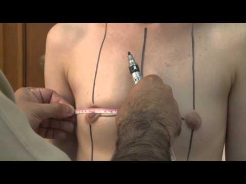 Пластическая операция по увеличению груди в Дельта Клиник