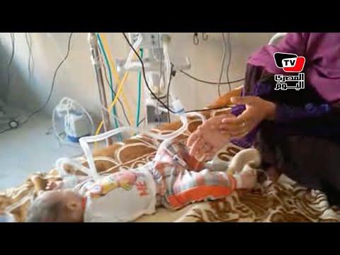 احتجاز أطفال بمستشفى بني سويف لإصابتهم بنزلات معوية حادة