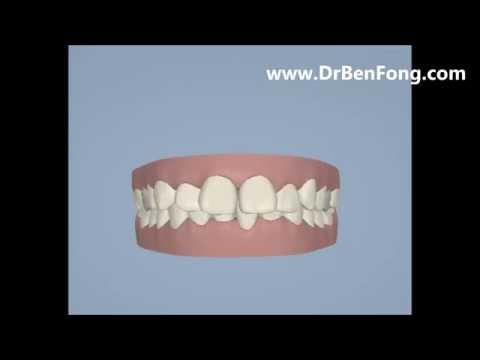 Invisalign Results for Jenny N.  Before & After   www.invisalignresults.ca