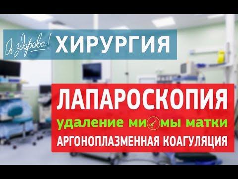 Лапароскопия  Удаление миомы матки  Аргоноплазменная коагуляция