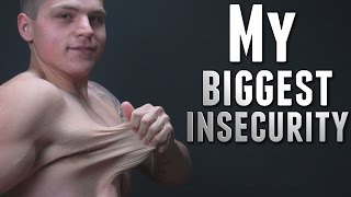My Biggest Insecurity: Loose Skin (Inspirational Video)
