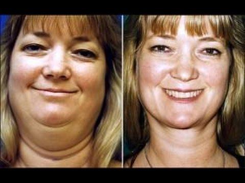 Weight loss center ocala fl photo 8
