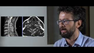 La Mielopatia Cervicale