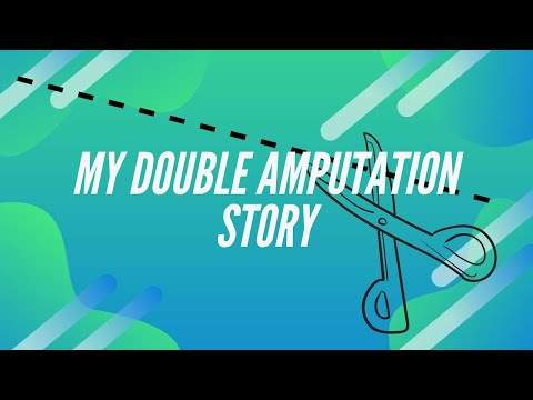 My Double Amputation Story