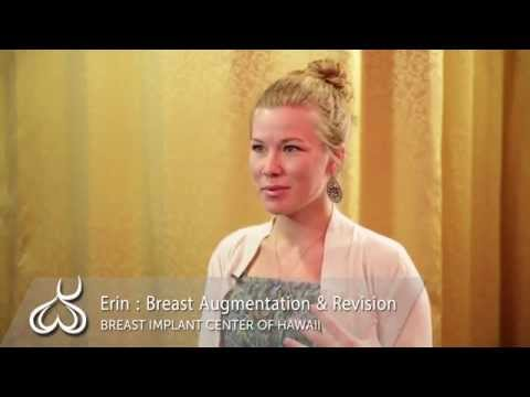 Hawaii Plastic Surgeon: Breast Augmentation after Weight Loss Story