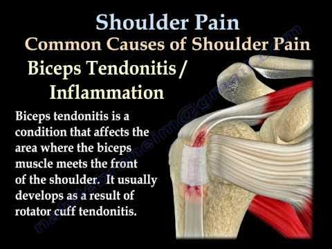 shoulder - shoulder pain diagosis and treatment animation video shows anatomy of the shoulder,labrum ,AC joint ,clavicle,acromion , bursa ,rotator cuff biceps. it expla...