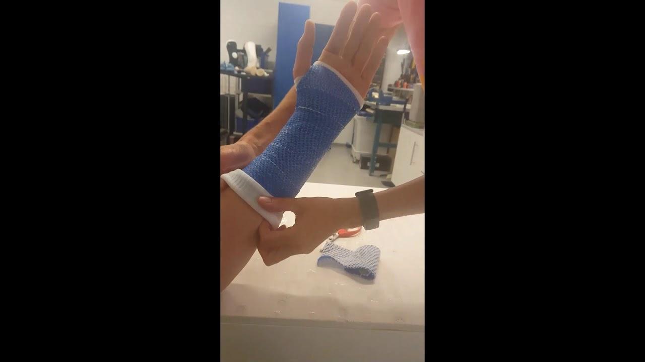 X-LITE® PLUS Wrist Cast