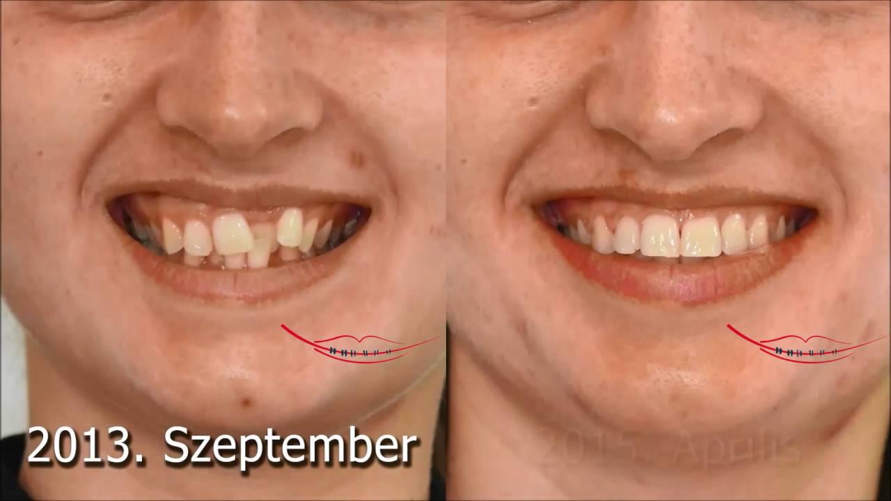 Keresztharapás és torlódás-aszimmetrikus mosoly
