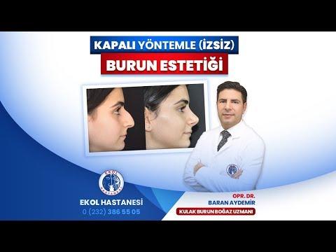Kapalı Yöntemle (İzsiz) Burun Estetiği - Opr. Dr. Baran Aydemir - İzmir Ekol Hastanesi