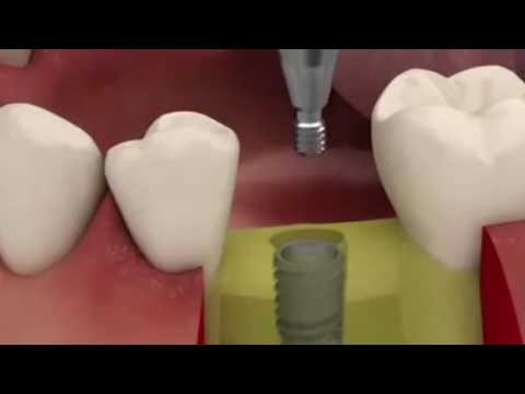 Effects of Smoking on Teeth and Recovery methods for the affected Teeth by Chisel Dental Clinic.