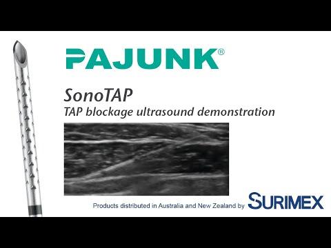 TAP Block Ultrasound
