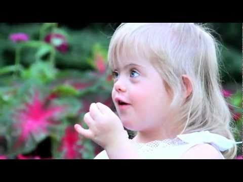 Watch video Down Syndrome: Just the Way You Are (Bruno Mars)