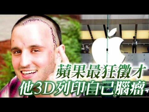 這位超狂男子發現頭部有腫瘤後「竟然要求3D列印出來」,瘋狂的決定連蘋果公司也注意到他!