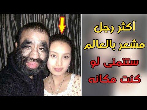 العرب اليوم - شاهد: طفرة جينية تحوّل رجلًا إلى كتلة من الشعر