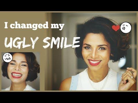 How to IMPROVE AWKWARD SMILE into PICTURE PERFECT Smile/ Without Dentist/ GIVEAWAY_Fogorvosi rendelőben. Heti legjobbak