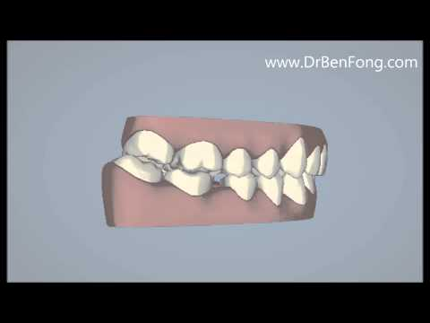 Invisalign Results for Arabiya H.  Before & After   www.invisalignresults.ca