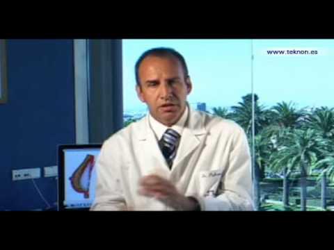 Dr. Vicente Paloma - Rinoplastia