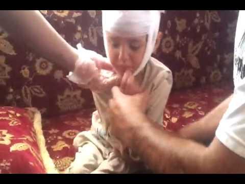 طفلة سورية مصابة… ماذا تقول ؟