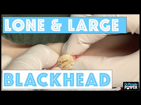 One Lone & Large Blackhead
