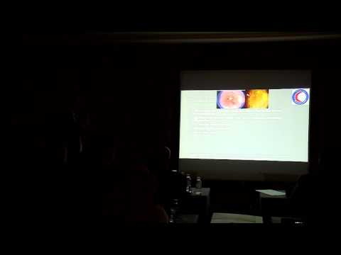 Laser treatment for DME past , Present & Future DR: Ahmed Mohammed El Barky