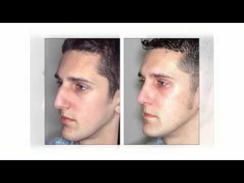 (617) 934-2327 Nose Job Prices Plastic Surgery Boston MA   Rhinoplasty Surgery Prices Massachusetts