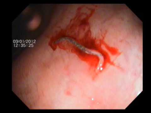 Worm in Endoscopy