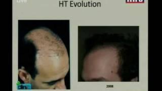 Hair loss and hair transplantation part 1 of 2