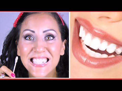 denti più bianchi - rimedio fai da te!