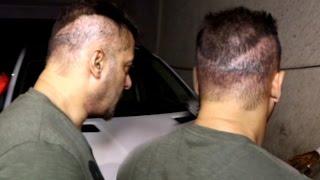 Salman Khan Hair Transplant Goes Wrong
