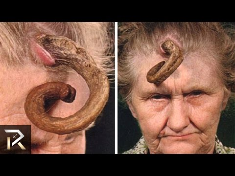 Shocking Medical Conditions You Won't Believe Exist