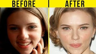 Video 5 Best Celebrity Nose Jobs In Hollywood (Before And After) MP3, 3GP, MP4, WEBM, AVI, FLV November 2018